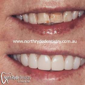 North Ryde Dentistry