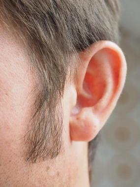 Tinnitus: What It Is and How to Reduce It