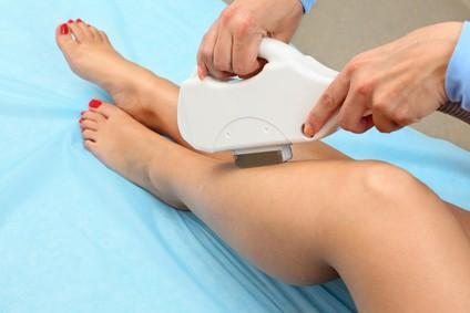 Laser Hair Removal: 5 Common Questions You Should Ask