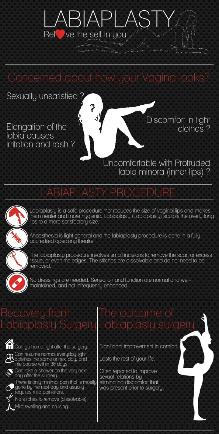 All you need to know about labiaplasty